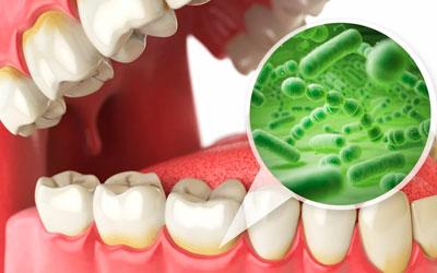 Патогенные микроорганизмы способствуют афтозному стоматиту - Стоматология Линия Улыбки