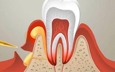 Прорыв гнойных масс при абсцессе - Стоматология Линия Улыбки