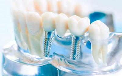 Протезирования зубов - Стоматология Линия Улыбки