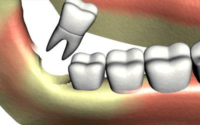 Шов защищает прооперированную зону от скопления пищевых остатков - Стоматология Линия Улыбки