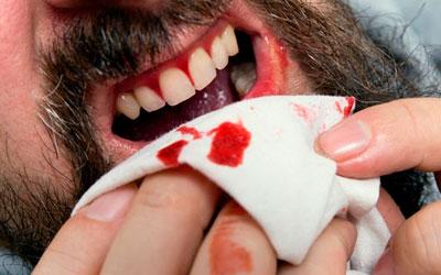 Травматические повреждения слизистой ротовой полости - Стоматология Линия Улыбки