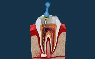 Удаление нерва - Стоматология Линия Улыбки