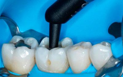 Уникальные материалы для пломбирования в стоматологии - Стоматология Линия Улыбки