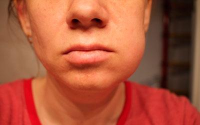 Воспаление отдельных пазух черепа - Стоматология Линия Улыбки