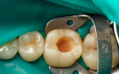 Выпадение пломбы - Стоматология Линия Улыбки