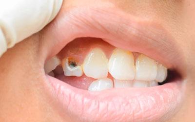 Запущенный кариес - Стоматология Линия Улыбки