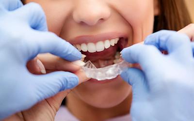 Исправление прикуса без брекетов у взрослых - Стоматология «Линия Улыбки