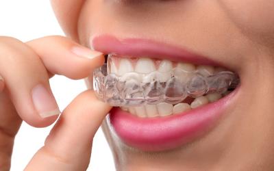 Особенности ортодонтического лечения у взрослых - Стоматология «Линия Улыбки