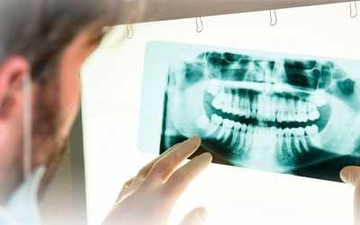 Панорамный рентгеновский снимок - Стоматология «Линия Улыбки