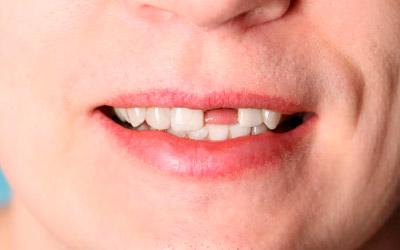 Причины выпадения зубов - Стоматология «Линия Улыбки
