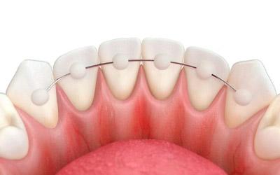 Шинирование зубов - Стоматология «Линия Улыбки