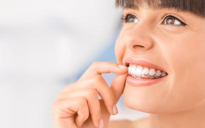 Стоматологические капы: разновидности, особенности использования - Стоматология «Линия Улыбки