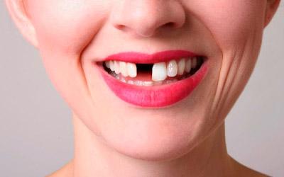 Восстановлением эстетики зубного ряда - Стоматология «Линия Улыбки