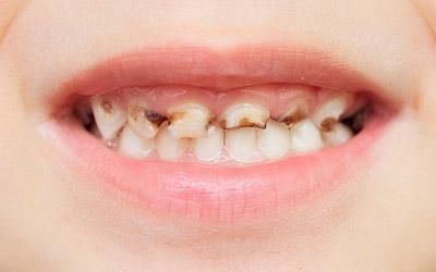 Возможные причины коричневых зубов - Стоматология «Линия Улыбки