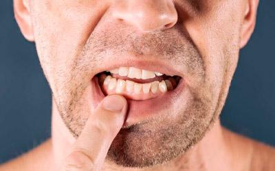Зубы шатаются: возможные причины - Стоматология «Линия Улыбки