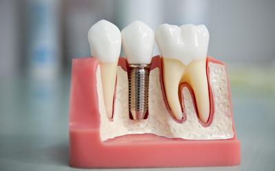Бережно относиться к протезу - Стоматология «Линия Улыбки»