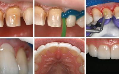 Этапы установки виниров - Стоматология «Линия Улыбки»