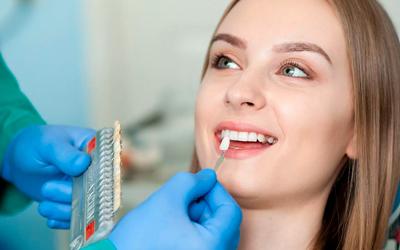 Как ставят виниры - Стоматология «Линия Улыбки»