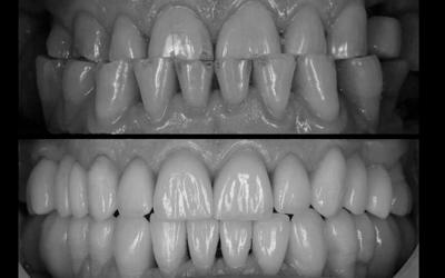 Варианты лечения - Стоматология «Линия Улыбки»