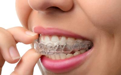 Методы предотвращения стираемости - Стоматология «Линия Улыбки»