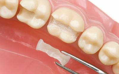 На какие зубы можно ставить микропротезы - Стоматология «Линия Улыбки»