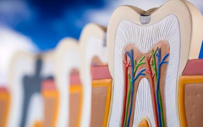 Неполное удаление пульпарных тканей - Стоматология «Линия Улыбки»