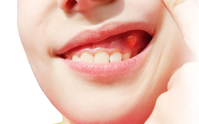 Причины болезни - Стоматология «Линия Улыбки»