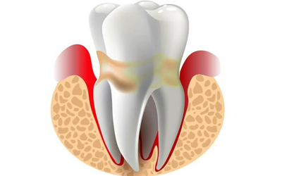 Причины возникновения проблем - Стоматология «Линия Улыбки»