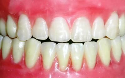 Противопоказания - Стоматология «Линия Улыбки»