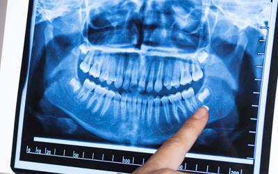 Проведение рентген-диагностики - Стоматология «Линия Улыбки»