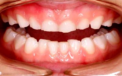 Cиндром Стентона-Капдепона - Стоматология «Линия Улыбки»