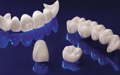 Срок службы - Стоматология «Линия Улыбки»