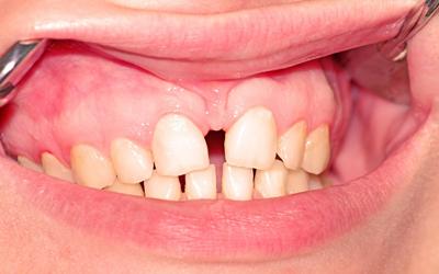 В каких ситуациях следует использовать - Стоматология «Линия Улыбки»