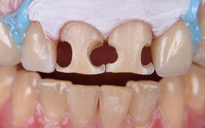 Виниринг разрушенных зубов - Стоматология «Линия Улыбки»