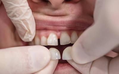 Виниры при стираемости - Стоматология «Линия Улыбки»