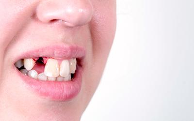 Чем лечить десну в домашних условиях - Стоматология «Линия Улыбки»
