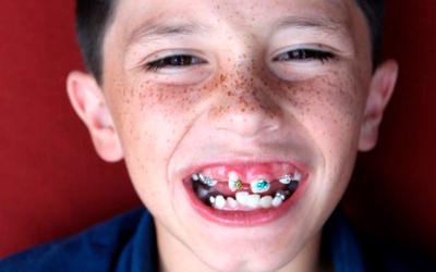 Что делать, если зуб растет криво - Стоматология «Линия Улыбки»