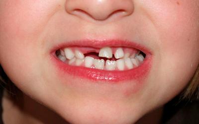 Если самые первые зубки кривые - Стоматология «Линия Улыбки»