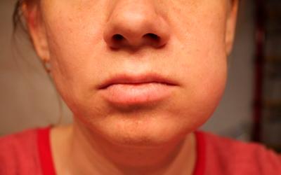 Когда без антибиотиков не обойтись - Стоматология «Линия Улыбки»