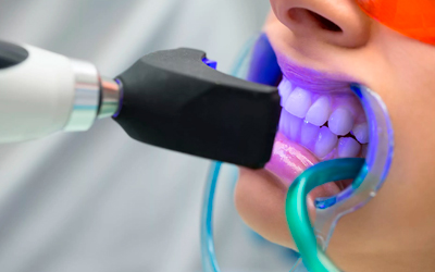Лазерное и Фотоотбеливание - Стоматология «Линия Улыбки»