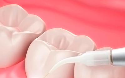 Методы восстановления - Стоматология «Линия Улыбки»