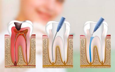Последовательность обработки - Стоматология «Линия Улыбки»