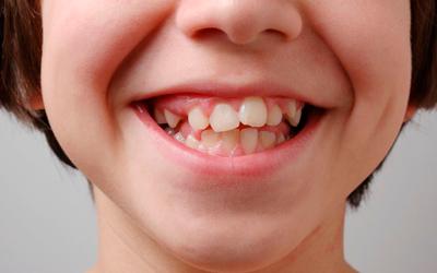 Причины кривого роста зубов - Стоматология «Линия Улыбки»