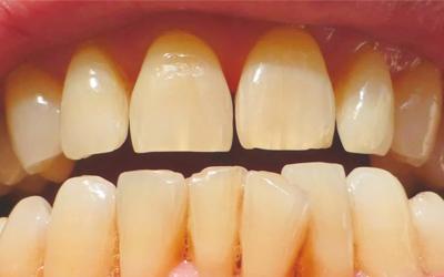 Противопоказания к отбеливанию зубов - Стоматология «Линия Улыбки»