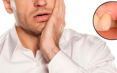 Самолечение во время восстановления как источник проблемы - Стоматология «Линия Улыбки»