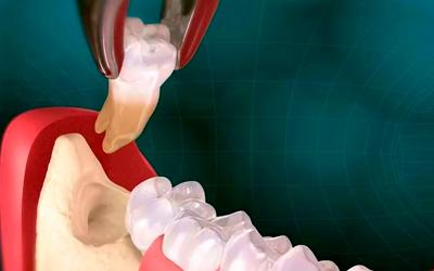 Заболевания, из-за которых болит десна - Стоматология «Линия Улыбки»