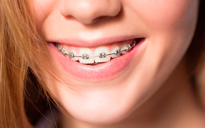 Этапы лечения с применением несъемных стоматологических конструкций - Лето