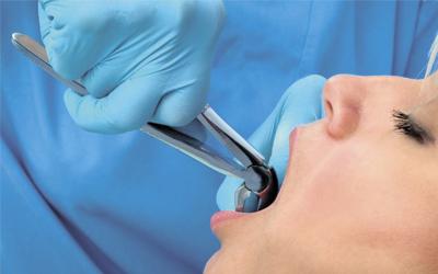 Что делать перед удалением восьмерки - Стоматология «Линия Улыбки»