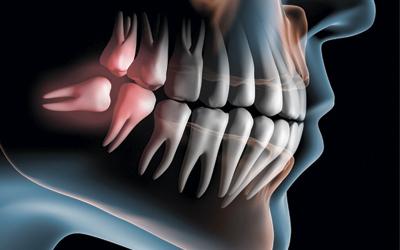 Отек десны если женщина не обращается вовремя к стоматологу - Стоматология «Линия Улыбки»