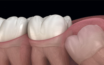 Формирование полой опухоли на кости в районе «восьмерки» - Стоматология «Линия Улыбки»